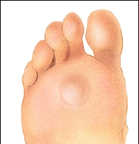 Callus on the Bottom of the Foot LIVESTRONGCOM