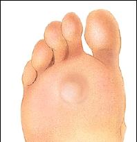 foot callus icd 9 code