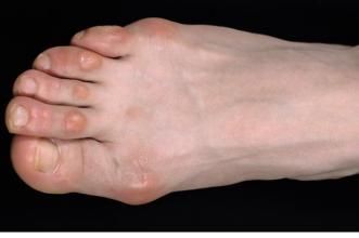 foot callus