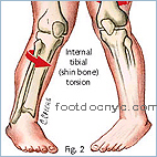 Tibial Torsion, Intoeing, Pigeon-Toed